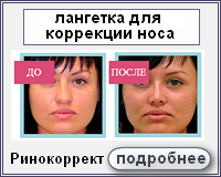 Ринокоррект - лангетка для коррекции носа