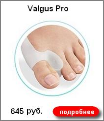 Valgus Pro 645 руб.